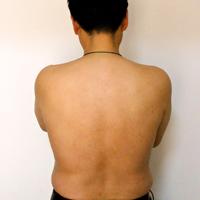 治疗背疮的偏方