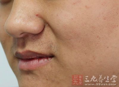 维生素e可以擦脸吗 维生素e擦脸能养颜美肤
