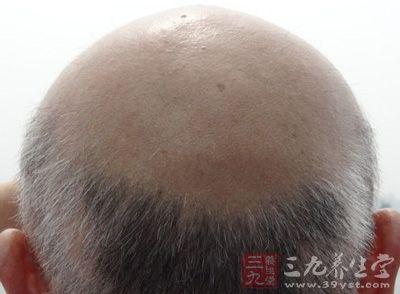 脱发怎么办 男性防脱关键在于及早治疗