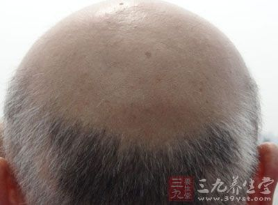 脂溢性脱发治疗 教你脂溢性脱发的治疗方法