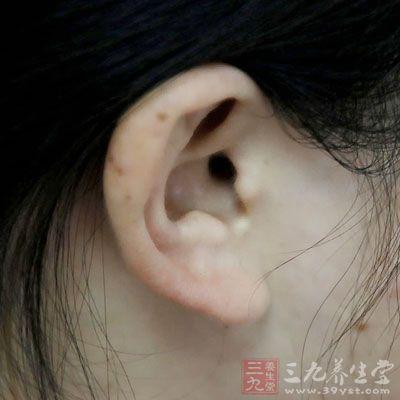 耳朵外表辨疾病图片