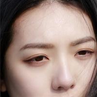 针灸治疗眼袋
