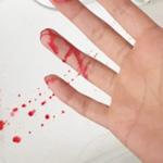 血流变可查抄哪些题目