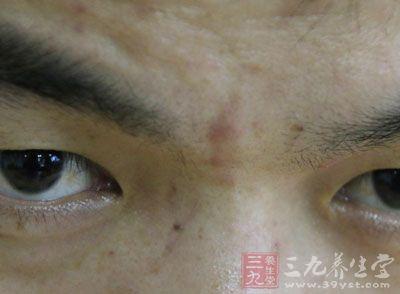 长在眉心的痘痘一般都很大,是多个毛孔堵塞发炎的结果