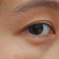 干眼症中药方剂