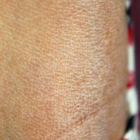 干燥综合征中药方剂