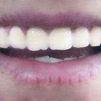 牙痛中药方剂