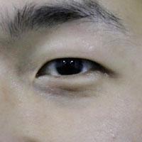 角膜炎的中药方剂