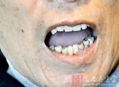 牙齿和牙龈的生长从根本上来说也要赖于气血的濡养