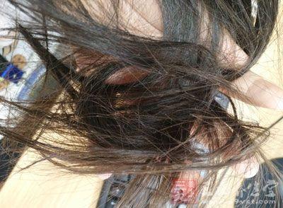 青少年大量脱发是为啥