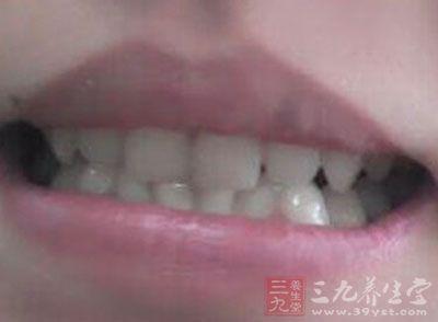舌头溃疡严重吗 得了舌头溃疡怎