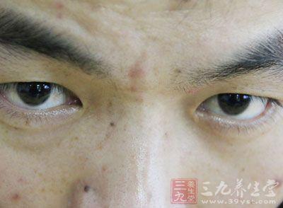 肺热引起的暗疮,一般会出现在脸部和额头