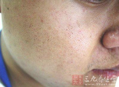 痤疮是一种发生于面颈、胸背部的毛囊、皮脂腺的慢性炎症性疾病