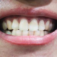 牙齿意外受伤怎么办