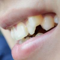 牙龈炎中药方剂