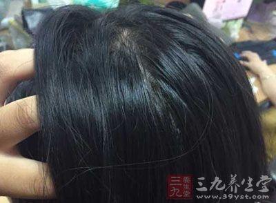 有些人明明不是脱发,但是仍感觉头发变得稀少