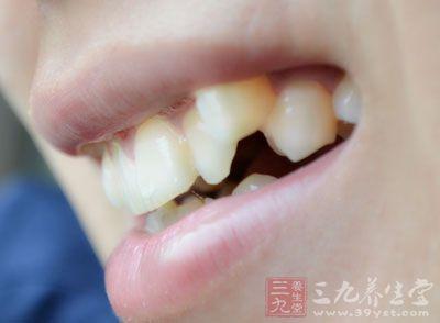 口齿病,隋唐时虽已立于学馆,但无新的发展
