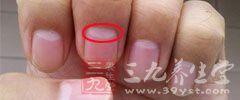 指甲上发现一些白斑则可能意味着,气血不足