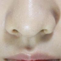 鼻咽癌中药方剂