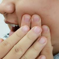 腮腺炎方剂