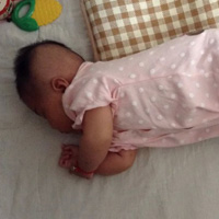 新生儿黄疸严重可致残 应高度警惕