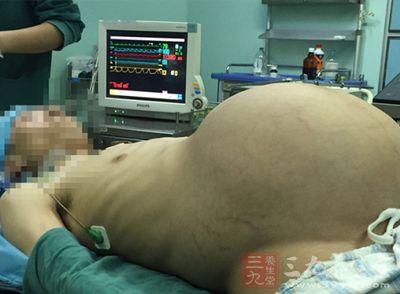 12岁少女腹大如怀孕 手术取出25厘米卵巢囊肿