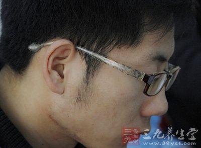 超高度近视患者一般认为是900度以上的近视患者