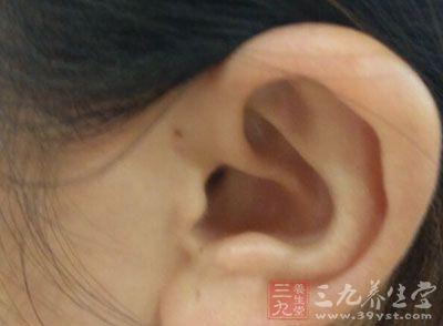 另一类为外耳道皮肤的弥漫性炎症,又称弥漫性外耳道炎