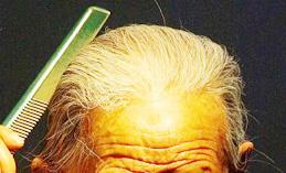 老人经常梳头竟有4大好处