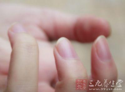 患者双手只有4个指甲显示有小弯月