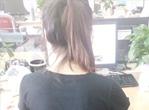 电脑族治疗肩周炎的方法