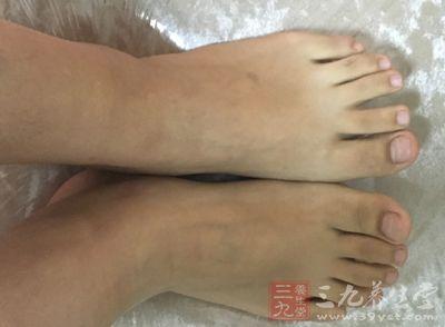 脚步是容易因为潮湿而生病的部位