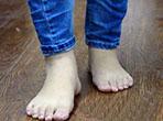 脚大年夜小产生变更反应疾病