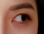 眼角发痒或是这种病