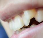 致牙齿松动的原因是什么