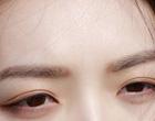 割双眼皮要注意哪些事项