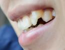 磨牙是什么原因