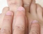 如何预防痛风病反复发作