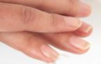 手脫皮是什么原因