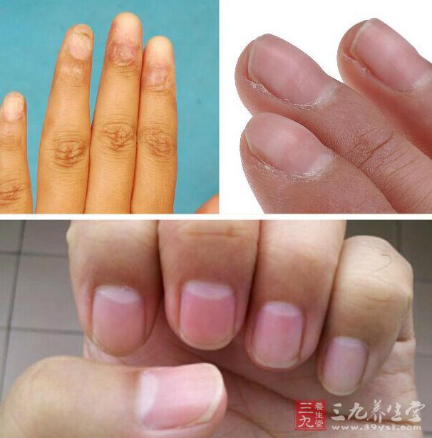 指甲的异变会影响我们的健康