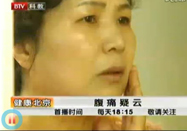 健康北京:腹痛疑云