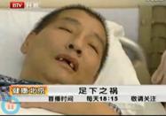 健康北京:足下之祸腿疼脚麻另有隐情