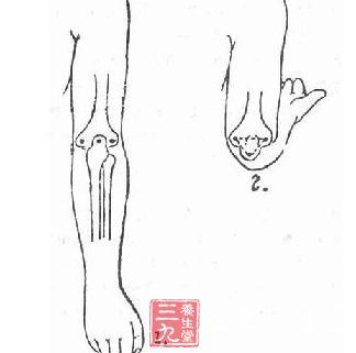 尺骨鹰嘴解剖图 尺骨鹰嘴骨折解剖图 尺骨鹰嘴骨折图片