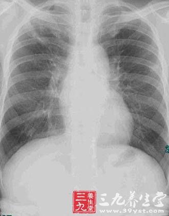 以弥漫性肺泡炎和肺泡结构紊乱最终导致肺间质纤维化