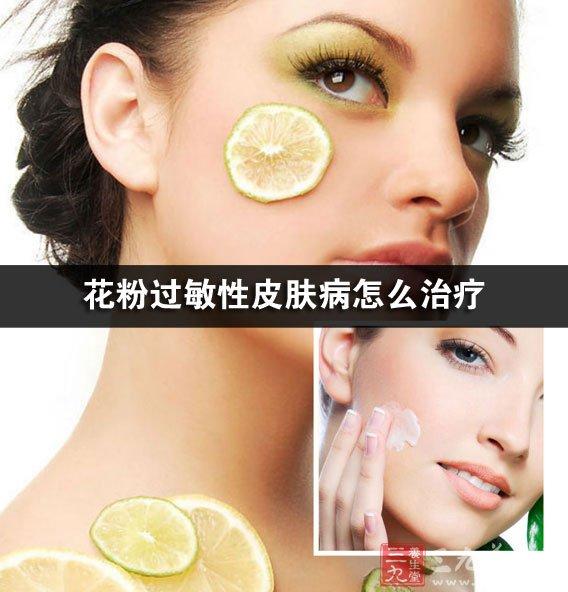 花粉过敏性皮肤病怎么治疗