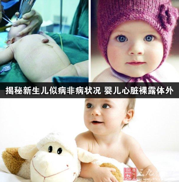 揭秘新生儿似病非病状况 婴儿心脏裸露体外