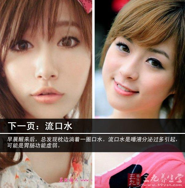 4,嘴唇干涩      嘴唇虽是黏膜,但与皮肤最大的不同是没有汗腺