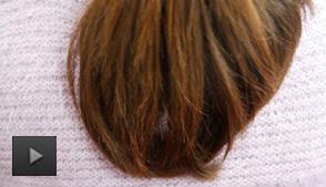 甲亢会引起脱发吗