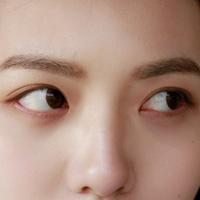 眼部疾病怎么调理 调理眼病的食疗方