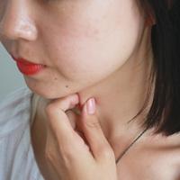 中医治疗慢性扁桃体炎 治疗扁桃体炎偏方
